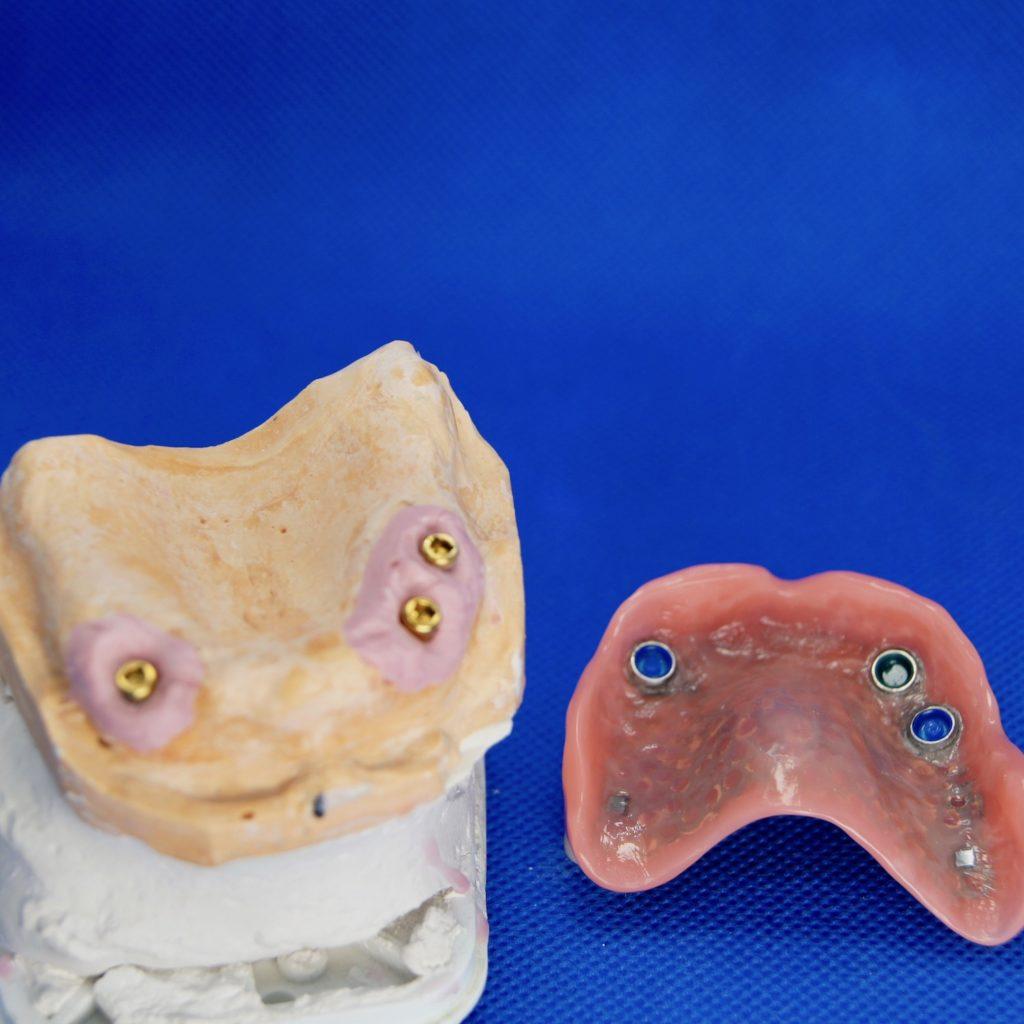 Locater Prothese mit 3 Implantaten im Oberkiefer