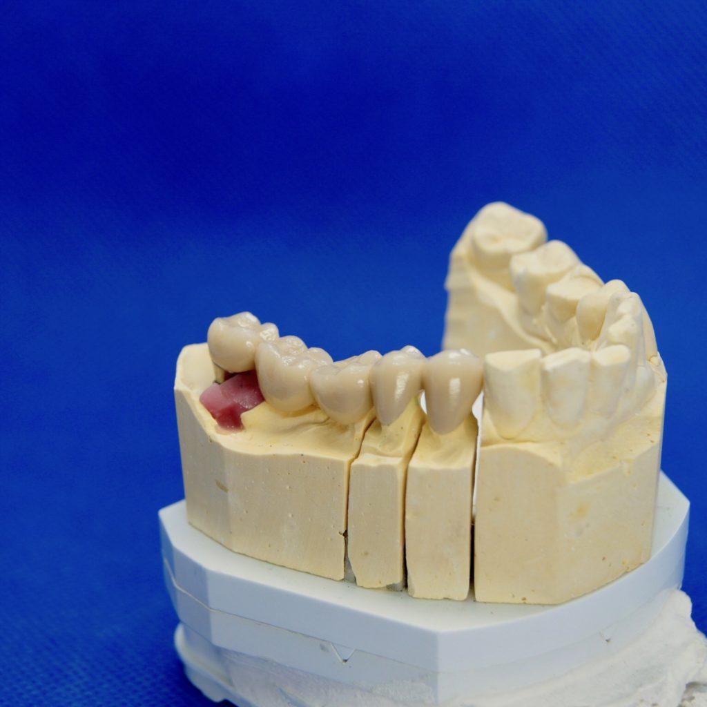 Brücke auf Implantat und Eigenzähnen