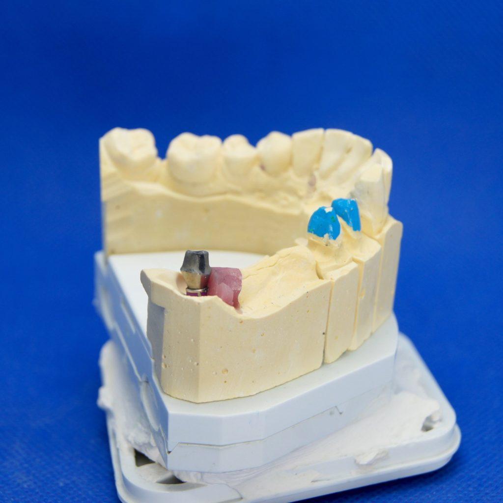Brücke auf Implantat und Eigenzähnen Zahnersatz
