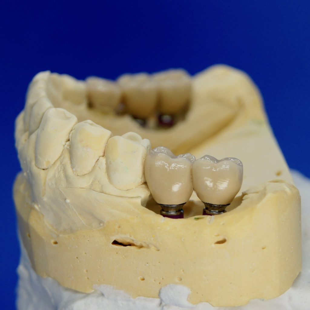 Implantate mit Keramikkronen versorgt