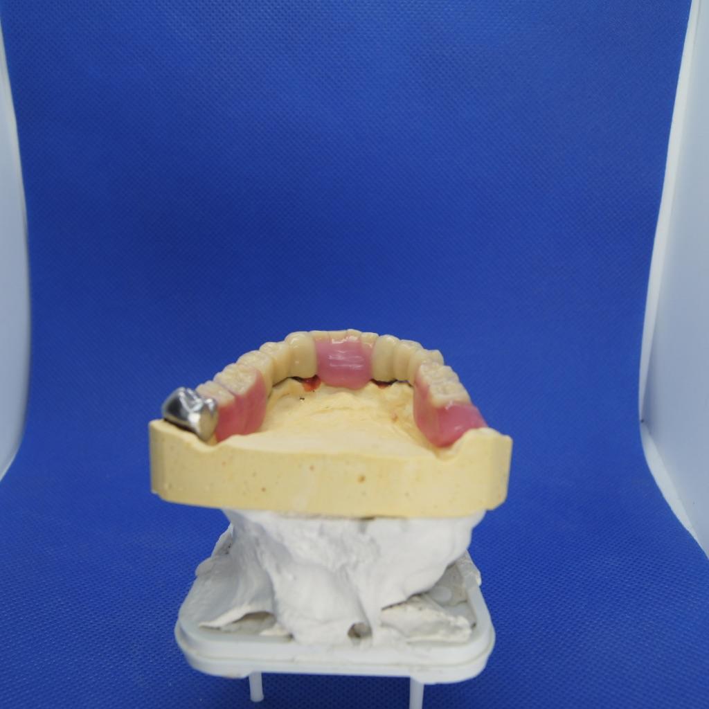 Zahnersatz Eingußtechnik Unterkiefer