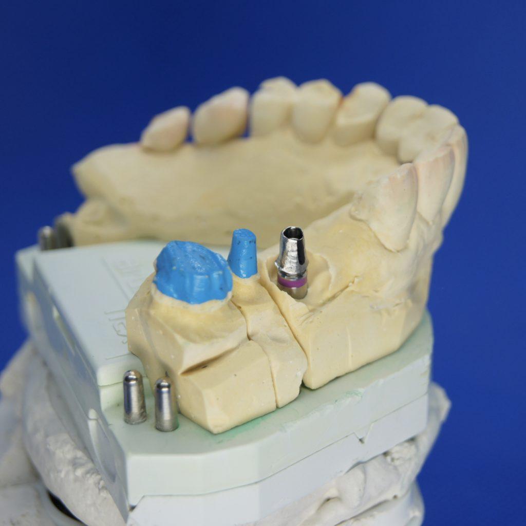 Implantate Zahnersatz Kronen Neuenhagen