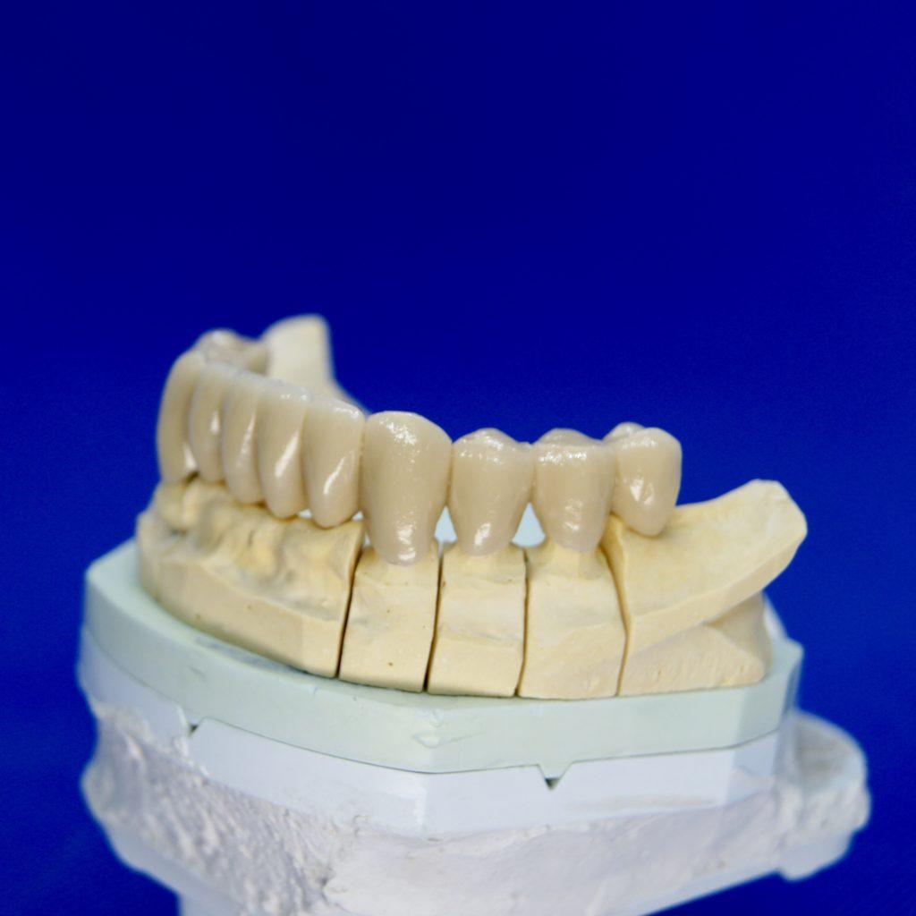Zahnersatz Kronen Neuenhagen