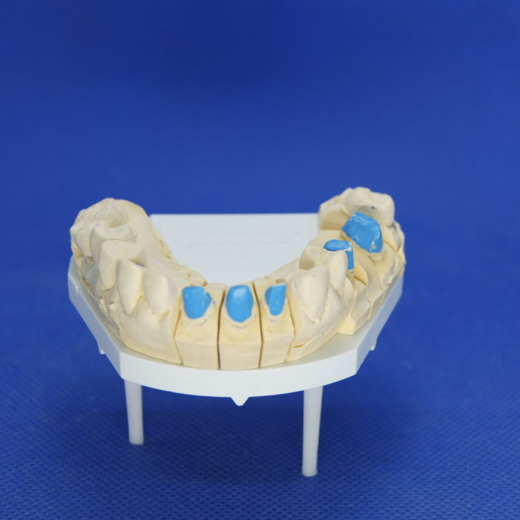 Zahnersatz Kronen Implantate Neuenhagen