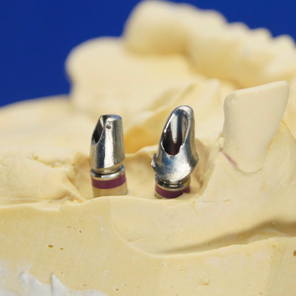 Zahnersatz Neuenhagen