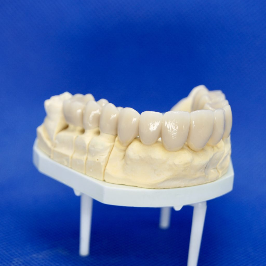 Zahnersatz Kronen Implantate Neuenhagen Dentallabor